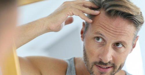 Hair loss nutrition tips